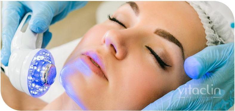 Procurando tratamento para Acne? Temos 25 anos