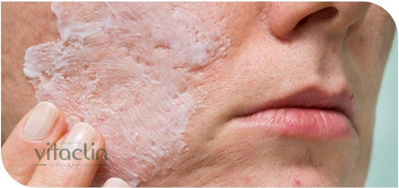 Peeling de Ácido Salicilico